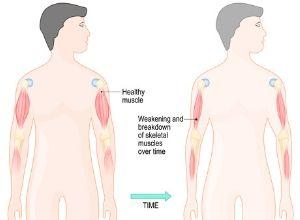 Schèma musculaire des muscles victimes de dystrophie