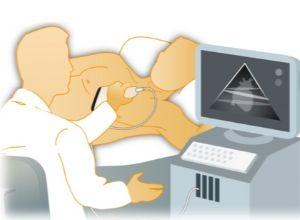echocardiographie-examen