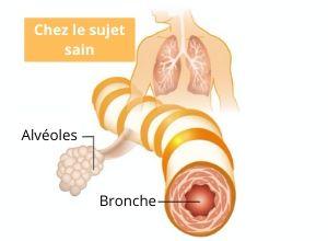 emphyseme-poumon