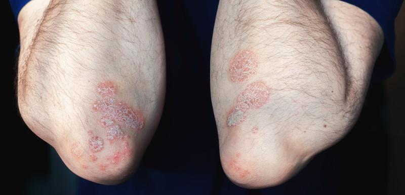 Psoriasis : retrouver une peau sans lésion, un idéal inaccessible ?