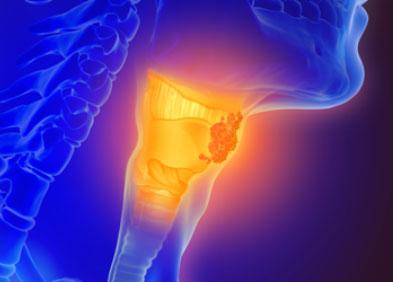 Image de synthèse représentant un cancer du larynx