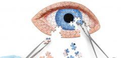 Chirurgie de la cataracte : l'anesthésie locale privilégiée