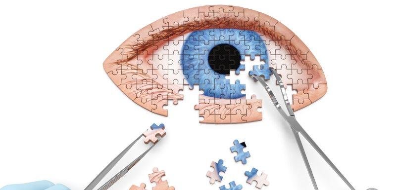 Puzzle en construction à l'aide de pinces qui représente en oeil