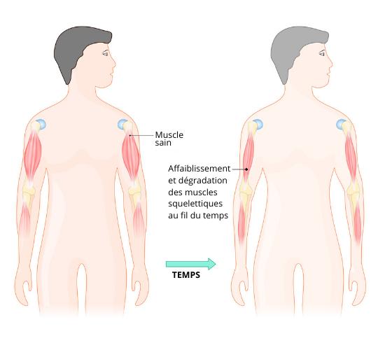 schéma décrivant comment se présente la myopathie de dychenne