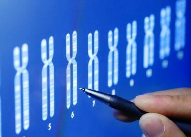 Syndrome du chromosome 22 en anneau