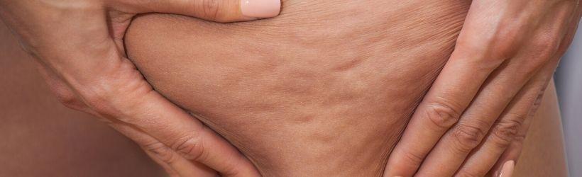 Femme qui serre sa peau pour montrer la cellulite