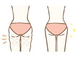 Illustration montrant une femme de dos avec de la cellulite et une autre à côté sans cellulite