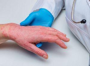 dermatite sur les mains