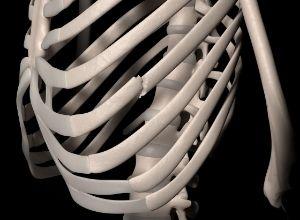 Squelette avec une fracture au niveau des côtes