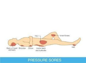 Illustration des symptômes d'une escarre