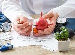Médecin qui tient dans ses mains une maquette de la vessie pour expliquer un diagnostic