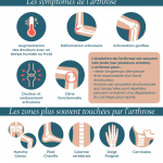 Infographie : L'arthrose en France
