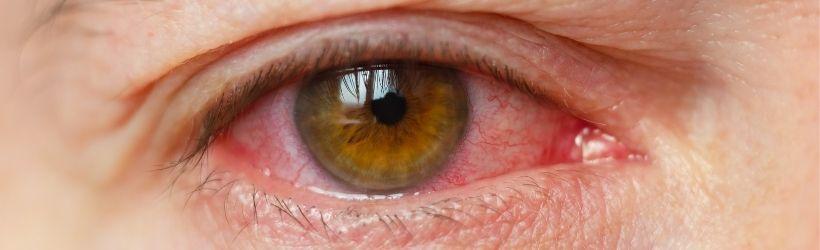 oeil qui a une inflammation de la cornée