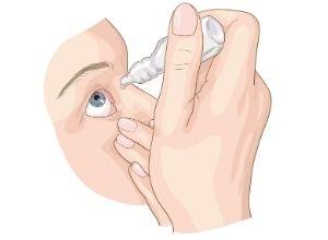 illustration d'une personne qui se met des gouttes dans ses yeux