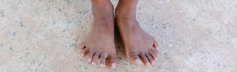 jeune enfant qui présente une polydactylie des pieds. Ses pieds présentent donc 6 doigts de pieds