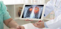 Cancer du poumon lié au syndrome métabolique chez les hommes