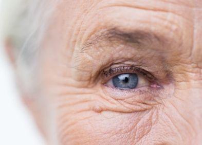 Personne agée souffrant de Blépharospasme