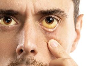 des yeux jaunes