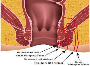 schéma d'une fistule