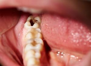 photo d'une dent