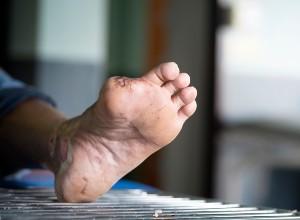 Pied d'un patient atteint d'une gangrène