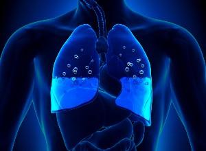 schéma pour représenter un Œdème pulmonaire