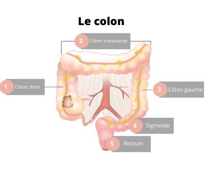 schéma du colon pour expliquer la colite