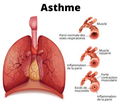schéma pour représenter l'asthme