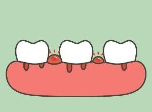 schéma de dents douloureuses