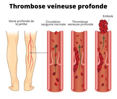 Schéma Thrombophilie