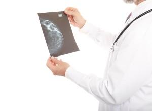 Diagnostic de la Gynecomastie chez l'homme