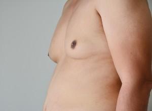 Symptômes de la Gynécomastie chez l'homme