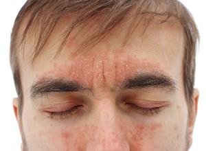 Dermite séborrhéique du visage