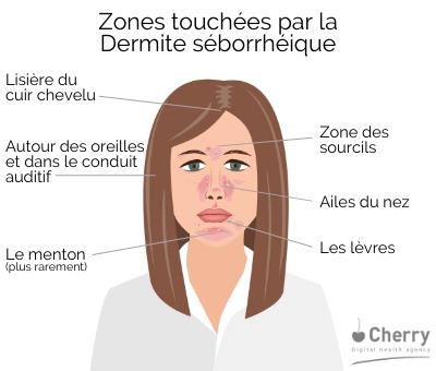 Zones touchées par la Dermite séborrhéique