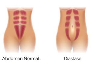 définition de la diastase abdominale