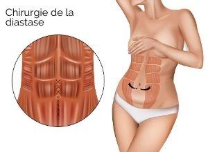 traitement de la diastase abdominale