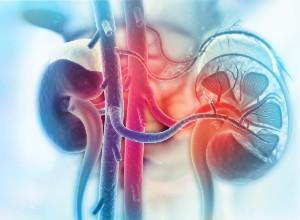 diagnostic d'une Hyperkaliémie