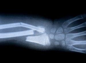 Maladie de paget : bras cassé