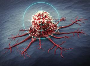 cellule de Métastase osseuse
