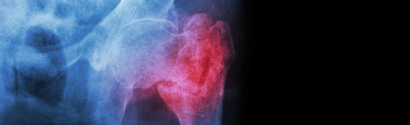 Métastase osseuse (tumeur osseuse métastatique)