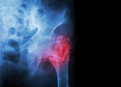 Métastase osseuse
