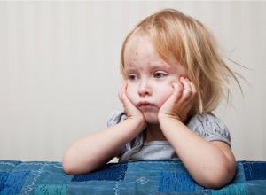 jeune enfant atteint de rubéole