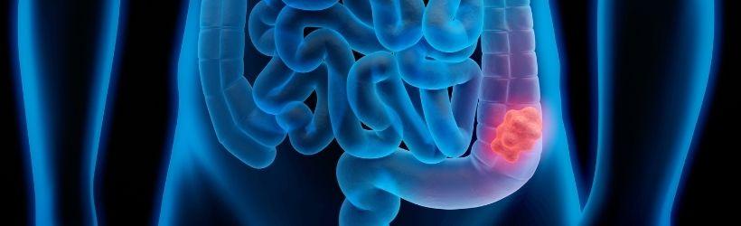 Cancer colorectal (cancer du colon)