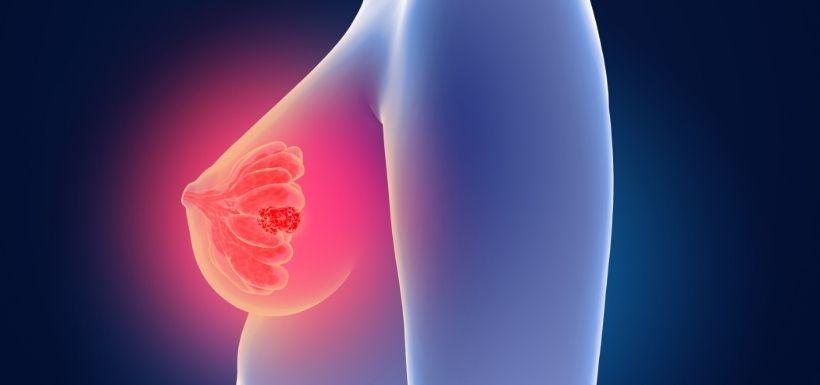 Cancer du sein : découverte d'un nouveau gène identifié