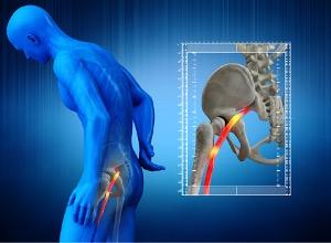 symptômes sur le corps humain de la cruralgie