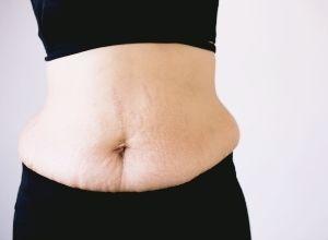 suite de couches, effet sur le ventre