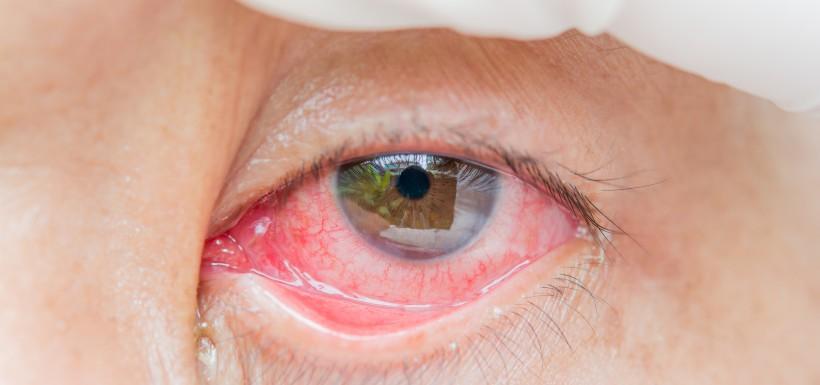 Yeux rouges, principal signe de la conjonctivite