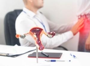 diagnostic de l'endométriose chez un médecin