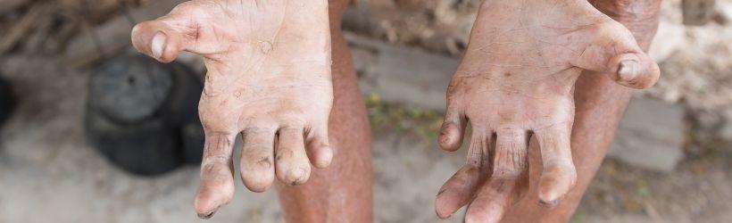 Lèpres des mains
