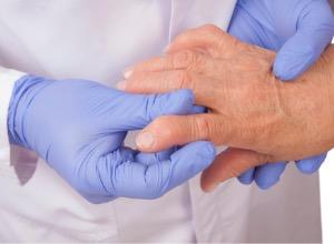 Polyarthrite rhumatoïde des mains